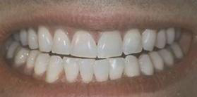 Dr. Samuel Moche - After Zoom Whitening