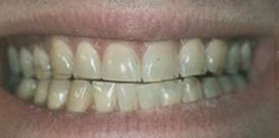 Dr. Samuel Moche - Before Zoom Whitening